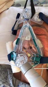 无创呼吸机可治疗什么疾病